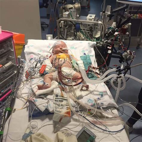 Tenant In Hospital Detoxing Can I Throw Him Out by Smiling Baby Defies Odds After Doctors Stopped For