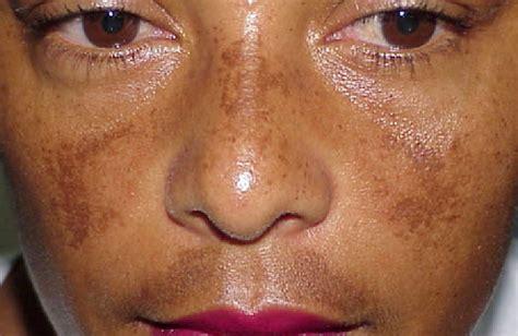tackling melasma skin gab