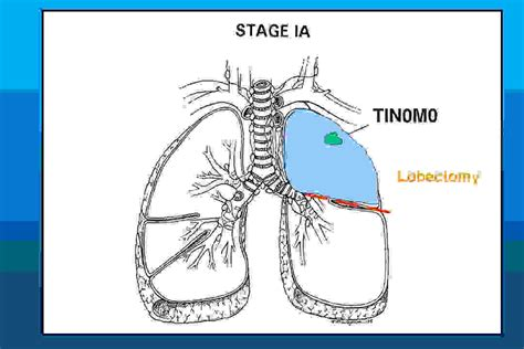 cancer expectancy stage 3b small cell lung cancer expectancy the one step home care