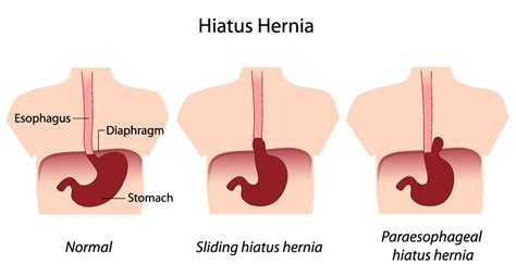 diagram of hiatal hernia sliding hiatal hernia applecool info