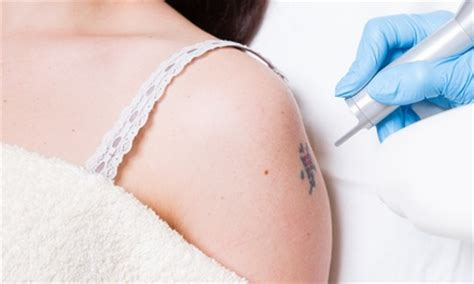 tattoo removal groupon leeds laser tattoo removal grace tattoo piercing groupon