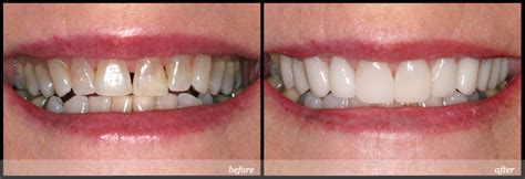 Pemutihan Gigi Di Malang cara memutihkan gigi audy dental
