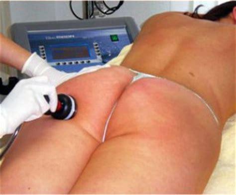 cavitazione quante sedute cavitazione cellulite