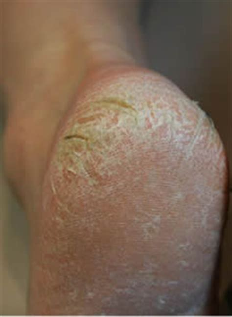 blue foot heel dead dry skin hard callus remover removal callus peel mobile service in the bracknell forest area