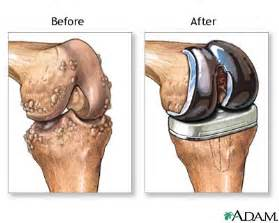 Pain In Back Of Knee After Knee Replacement Surgery by Knee Replacement Surgery Amp Arthroscopic Knee Surgery