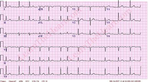 atrial fibrillation 3 learntheheart