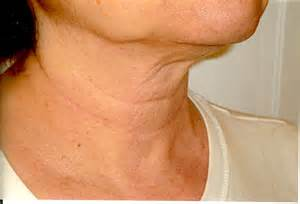 necks on tlc for my neck no nonsense beauty blogno nonsense