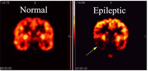 can a die from a seizure 45 000 sudden unexplained deaths in epilepsy