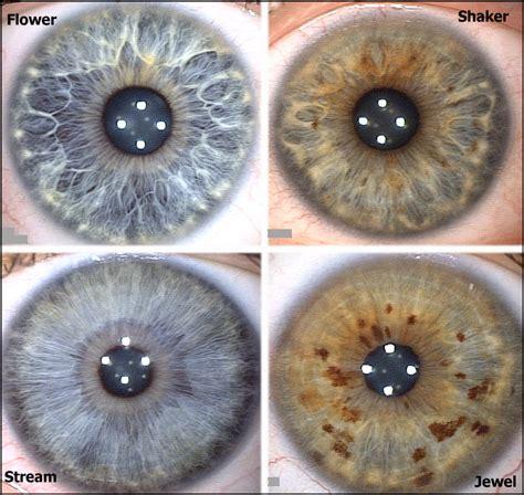 eye pattern meaning iris patterns structures rayid