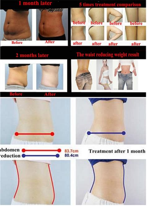 home cellulite laser lcd touch screen rf slimming beauty machine home cellulite
