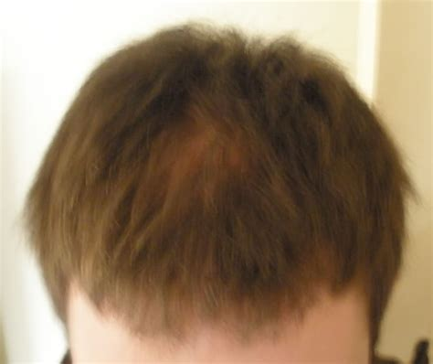 hair loss help forums avodart and panic attacks anxiety clinical depression and hair loss