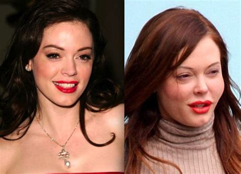 rose tarlow plastic surgery 201 best images about plastic surgery gone bad on