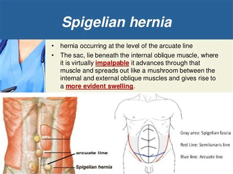 robotic surgery for abdominal wall hernia repair a manual of best practices books spigelian hernia gallery