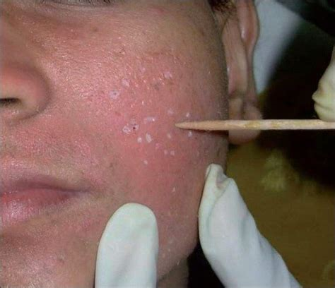 best acne scar treatment is tca cross method the best acne scar treatment at home