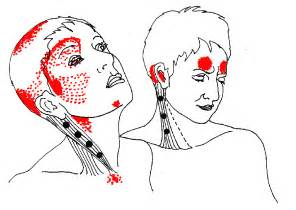 pin cervical lymph nodes these are located in the on