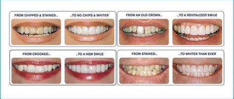 affordable dental veneers  melbourne special  offer