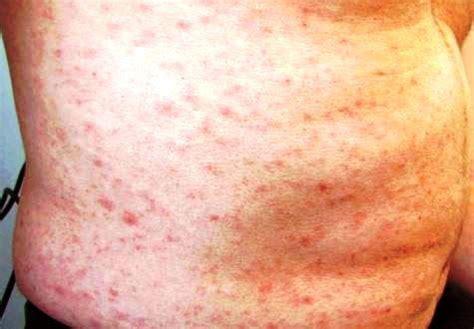 Vitamin B Detox Rash by Image Gallery Niacin Rash