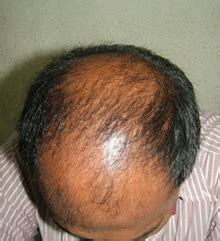 diffuse hair loss male pattern baldness diffuse pattern baldness images frompo