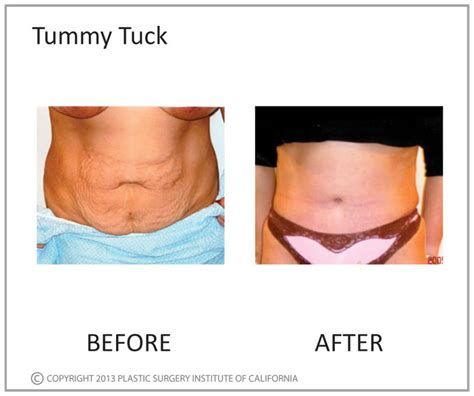 will insurance pay for tummy tuck after c section tummy tucks plastic surgery institute