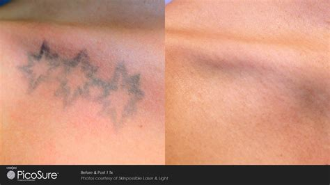 nj tattoo removal picosure removal nj collection