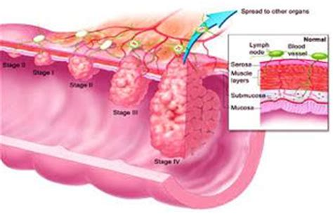diagram of colon cancer anatomy system human anatomy diagram and chart