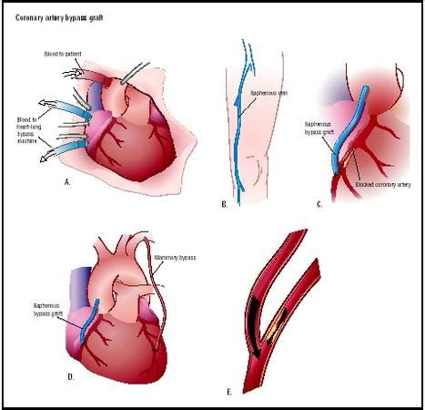 Coronary Artery Bypass Graft Surgery - procedure, recovery ... Heart Bypass Complications