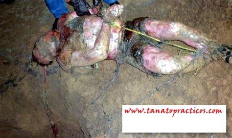 imagenes fuertes de cadaveres en descomposicion 301 moved permanently