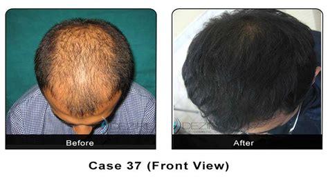 hair transplant calculator hair transplant photo gallery dezire clinic