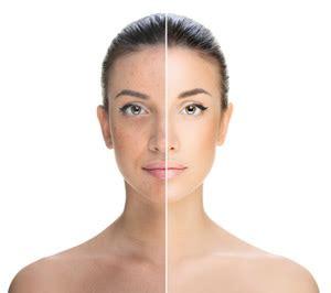 akne vorher nachher schminktipps 187 perfekt schminken lernen mit 252 ber 100