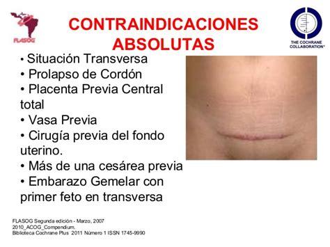 Q Causa Cytotec Al Feto Uso Del Misoprostol En La Mujer Embarazada