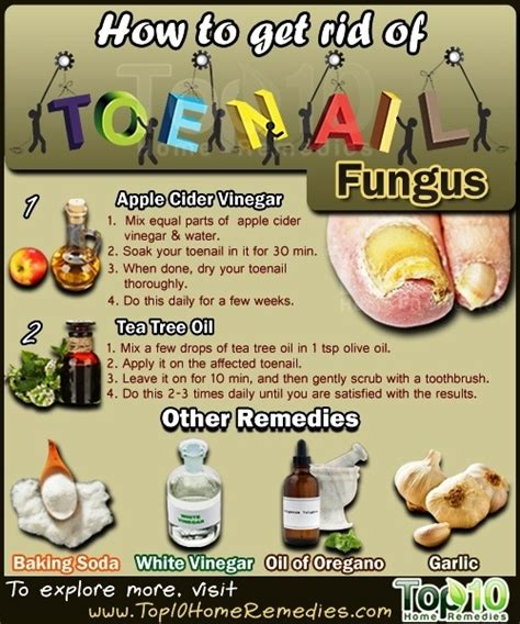 how hard is it to get rid of bed bugs how to get rid of toenail fungus top 10 home remedies