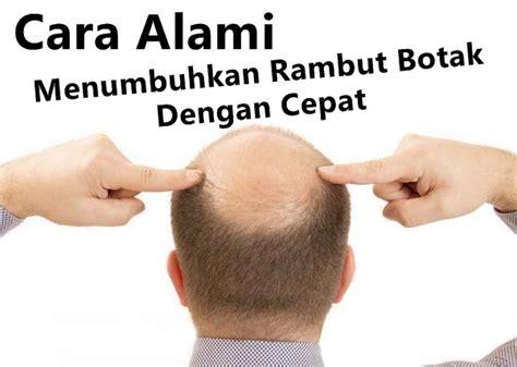 menumbuhkan rambut botak dan rontok nisimindonesia com tips cepat menumbuhkan rambut rontok dan botak secara alami