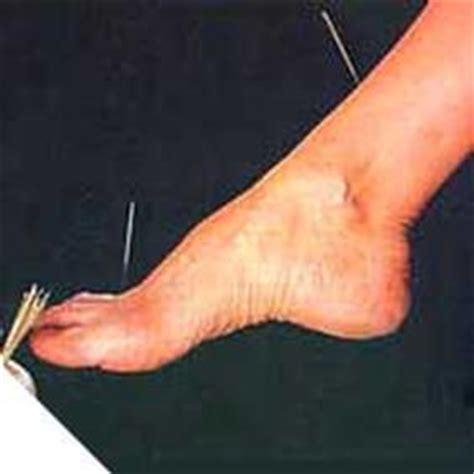 fior di prugna agopuntura firenze gli ospedali curano con l agopuntura lifegate