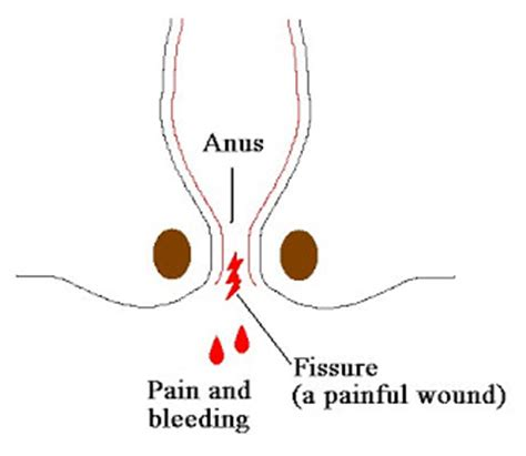 Blood In Stool Fissure by Become A Homeopathy Expert December 2010