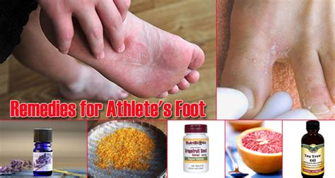 17 home remedies for athlete s foot