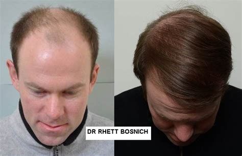 best hairtransplant in the world hair transplants and treatment in melbourne and sydney