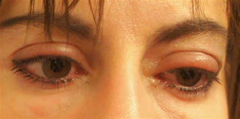 eyelid swollen 9 tips against swollen eyelids healthy lifestyle live