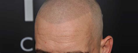 tattoo hairline cost what is smp scalp micropigmentation benefits risks