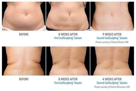 how coolsculpting works new style for 2016 2017