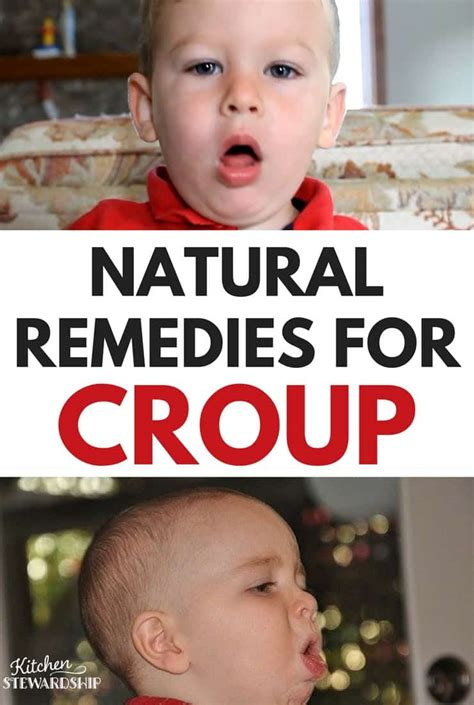 remedies for croup in and babies