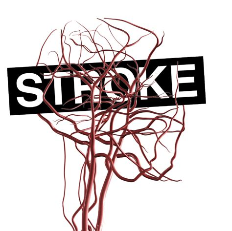 stroke treatment ultra early thrombolysis proves beneficial for stroke treatment the doctor s channel