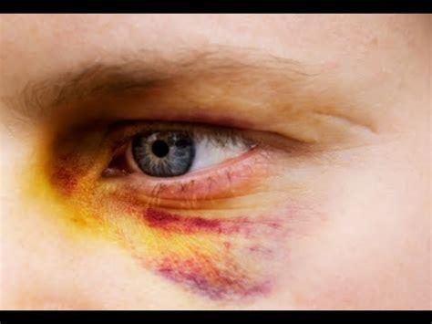 Black Yes how to get rid of a black eye fast black eye treatment