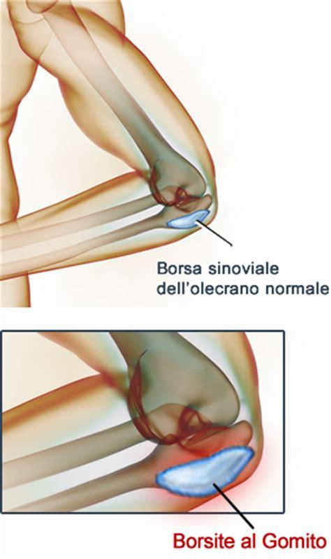 dolore ginocchio parte interna borsite gomito