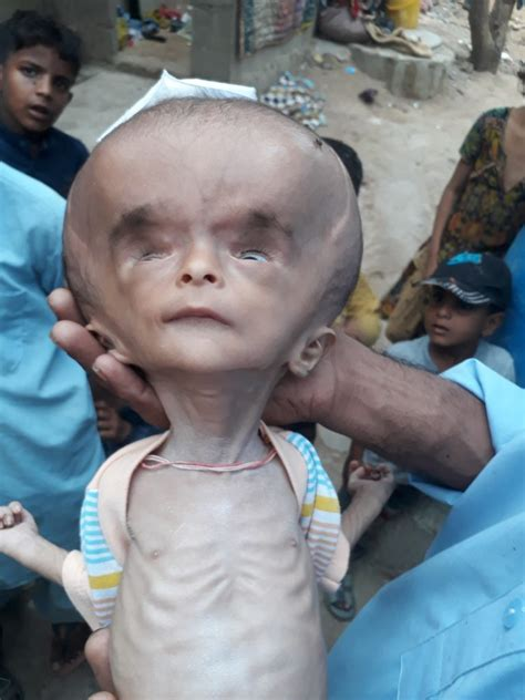 how pakistani make baby head pakistani baby with head the size of football awaits life