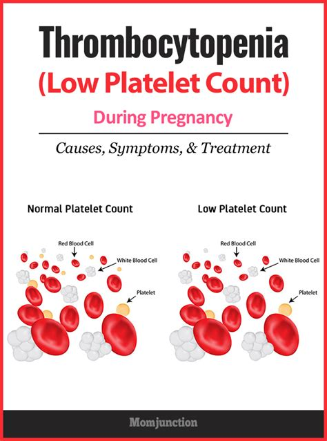 Thrombocytopenia Low Platelet Count During Pregnancy