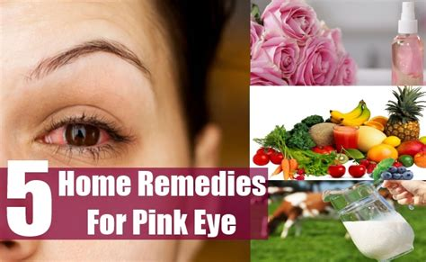 top home remedies for pink eye treatments cure