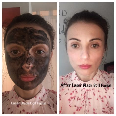 black doll treatment treatments 187 skin tightening saratoga springs ny