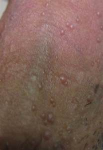 skin colored bumps on penile shaft the gallery for gt molluscum contagiosum penile shaft