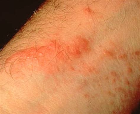 poison oak rash pictures symptoms causes treatment