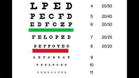 vision test eye